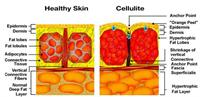 How to prevent cellulite?